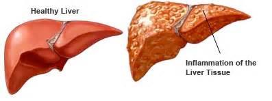 healthy liver hep c magazine picture 7