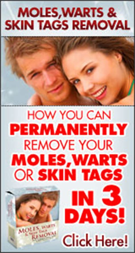 warts moles skin tag removal in ritm picture 12