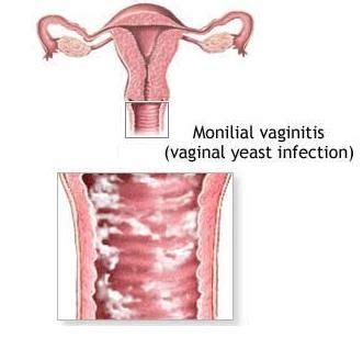 hardening of tissue vaginal yeast infection picture 9