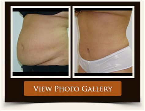 breast lift $3500 picture 6