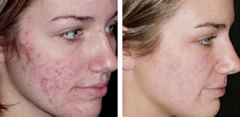 acne treatment scams picture 10