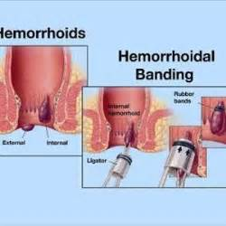 hemorrhoid treatment cure picture 2