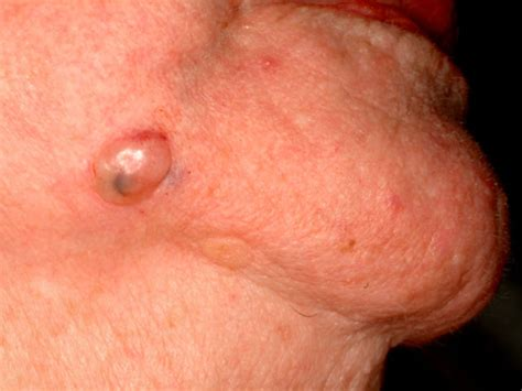 basal cell skin c picture 6