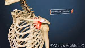 arthritis of the ac joint of the shoulder picture 7