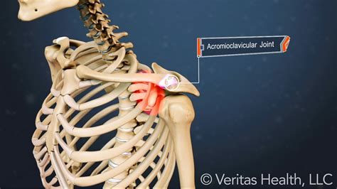 arthritis and ac joint picture 9