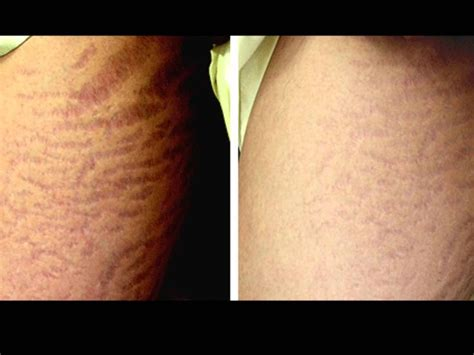 belly stretch marks;before and after; profractional picture 7
