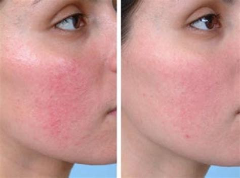 best acne medication picture 11