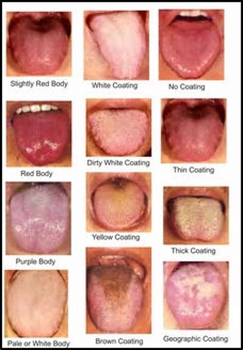 causes of changes of skin condition picture 10