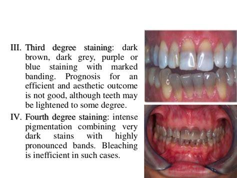 discolored teeth enamel effacia picture 6