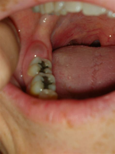 absess wisdom teeth removed picture 9