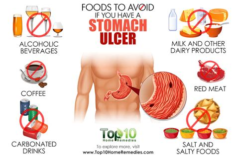 diet recommended for ulcers picture 2