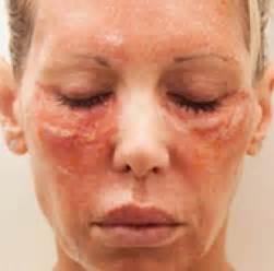 florence al laser skin care picture 9