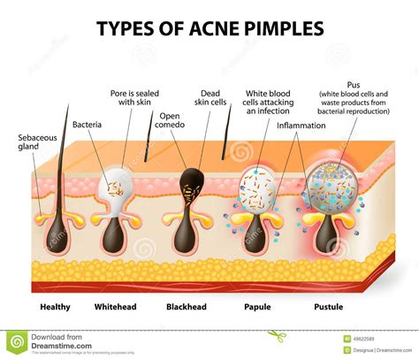 acne scarring picture 7