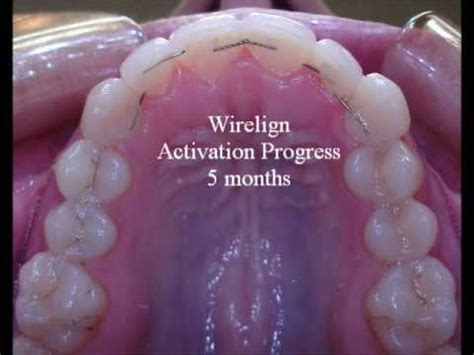 ways to striaghten your teeth besieds braces picture 1