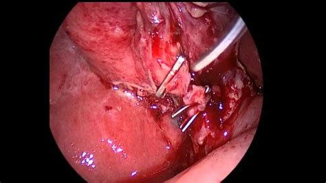 chronic cough gall bladder removal picture 21