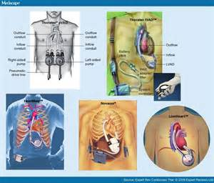 yeast in blood system with lvad picture 2