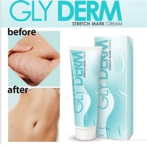 reduce stretch marks picture 2