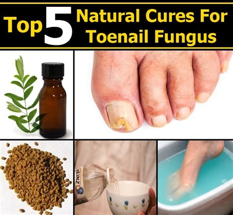 toenail fungus cures picture 19