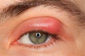 eye bacterial infections picture 6