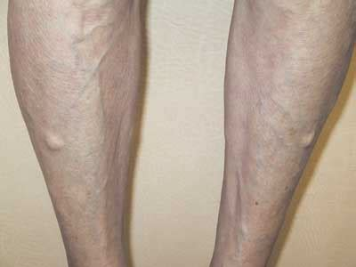 lump in leg muscle picture 3