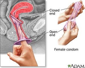 insertion of items in the male penis picture 11