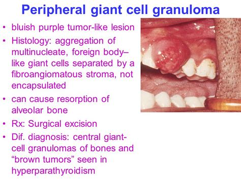 herpes from oral picture 9