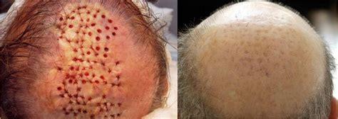 avodart hair loss results 2006 picture 2