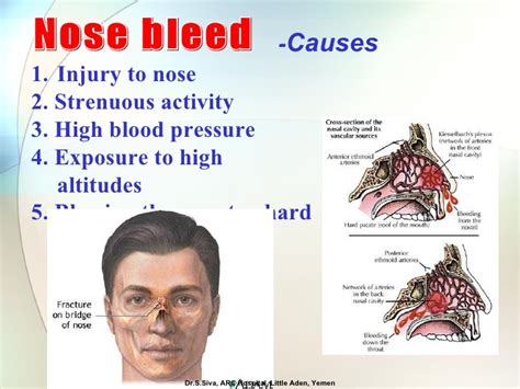 causes of blood pressure increase ans nose bleeds picture 3