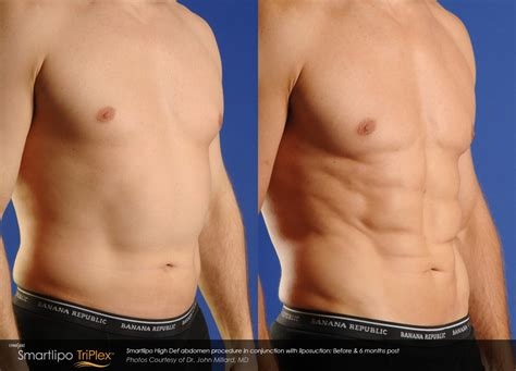 does lipo 6 make you lose your picture 2