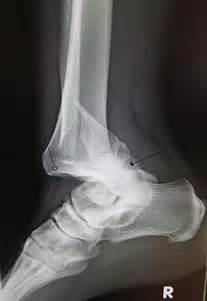 joint dislocation picture 5