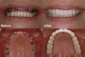 false teeth permanent killeen tx picture 14