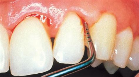 fluoride bad for teeth picture 18