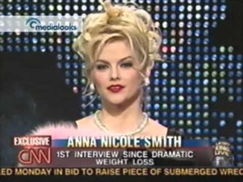 anna nicole's weight loss picture 11