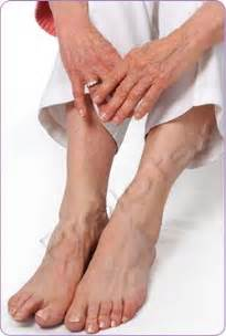 joint pain in hands and feet picture 1
