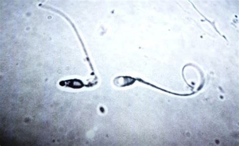 can sperm make your h white picture 3