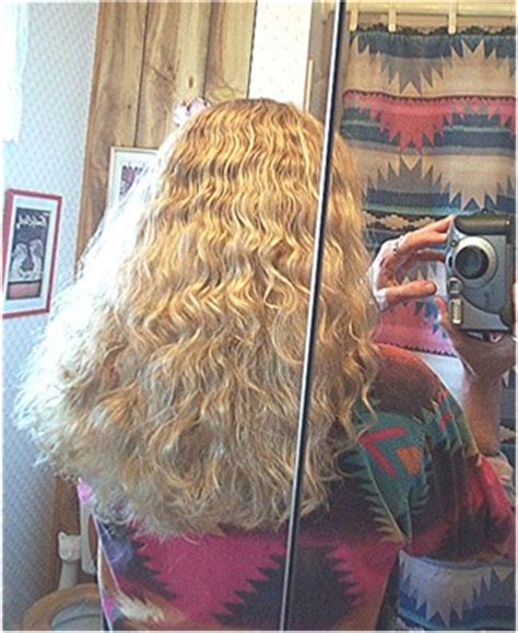 thyroid related hair loss picture 2
