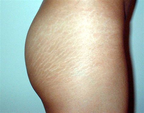 will tanning make stretch marks worse picture 1