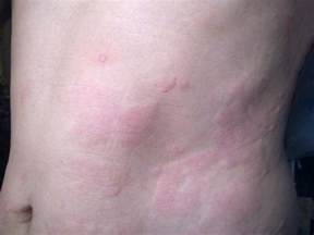 hives and borderline low thyroid picture 3