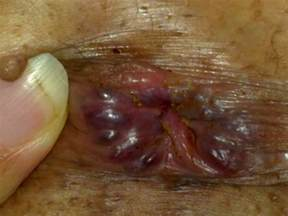 hemorrhoid prolapse picture 17
