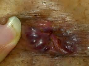 hemorrhoid prolapse picture 6