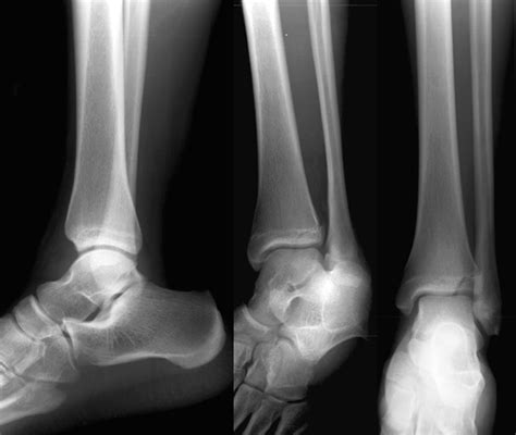 ankle joint effusion picture 7