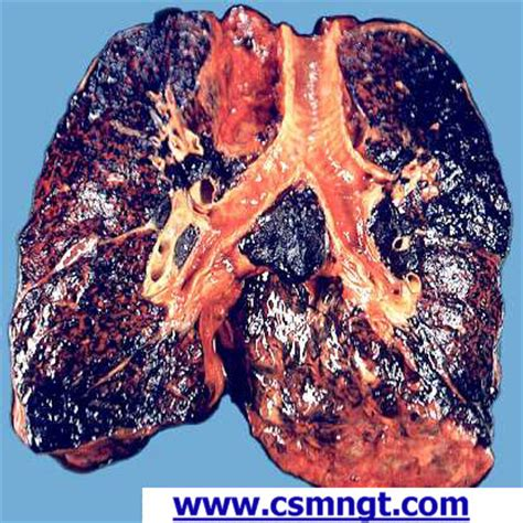 smoke in the lungs picture 3