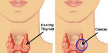 thyroid cancer treatments picture 9