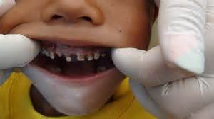 children's teeth pictures picture 13