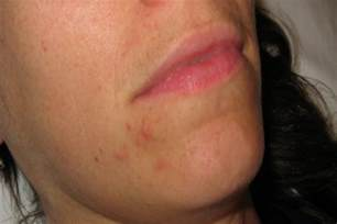 natural stretch mark remedy picture 9