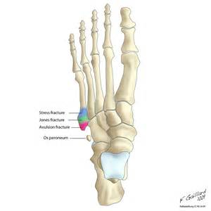 most common injuries to fifth metatarsal phalangeal joint picture 2
