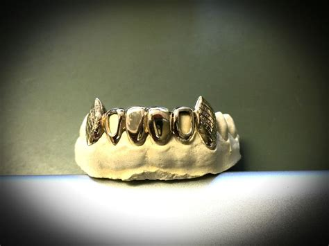 gold teeth dealers picture 6