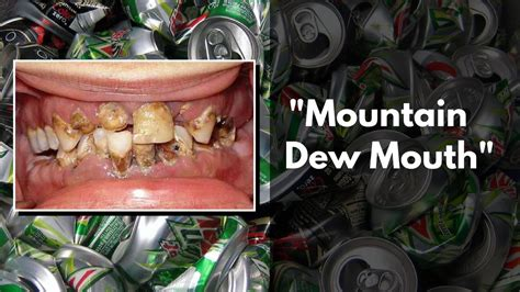 can diet mt. dew cause your lips to picture 8