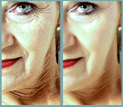 problems with aging skin picture 2