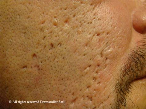 icepick acne scars picture 10